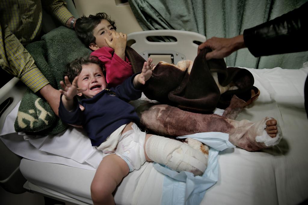 Systrarna Duàa, 1 och Shahad, 4, träffades av en granat och skadades svårt i Syrien. Foto: MAGNUS WENNMAN