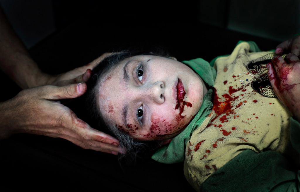 Aleppo 2013. Dania Kilsi, 11 år, lekte med sina två syskon i familjens trädgård när en granat föll ner. Foto: NICLAS HAMMARSTRÖM